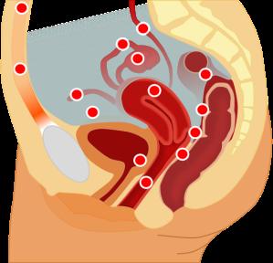 endometriosis - 2